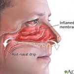 Nostril Test An Effective Way To Know About Your Snoring Problem