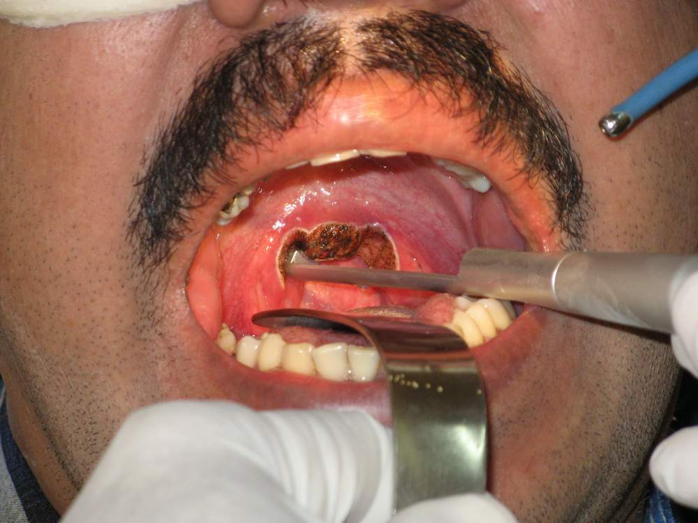 Laser Surgery For Snoring My Snoring Solutions
