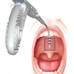 Pillar Procedure for Snoring and Sleep Apnea